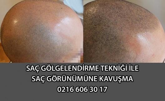 Saç Simülasyonu ve Saç Gölgelendirme Nedir? İstanbul Merkezi