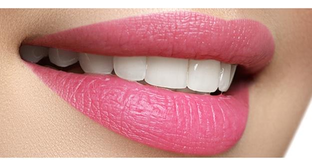 Diş Estetiğinde Diş Beyazlatma ve Diş Kaplama Uygulamaları