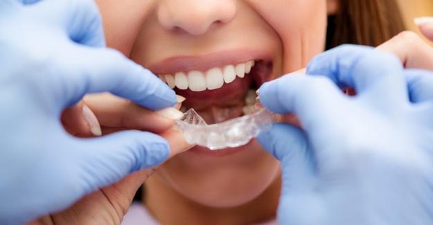 Rahat Gülüşler Düzgün Dişler