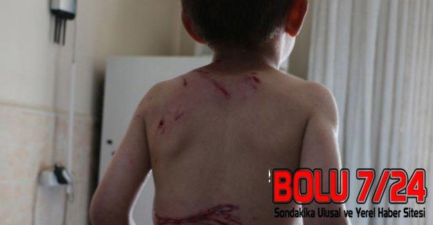 İtlerin Saldırısına Uğrayan 5 Yaşındaki Çocuğu Vatandaşlar Kurtardı