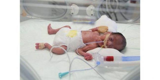 Prematüre Bebeğin Kalbindeki Deliği Kasıktan Girerek Kapattı