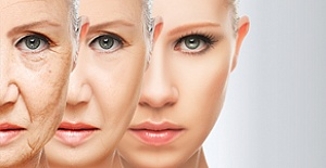 Kimyasal Peeling Uygulaması İle Derinin Yenilenmesi