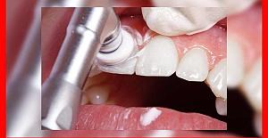 Emax Diş Kaplama Nasıl Yapılır?  En Yeni Yöntemler