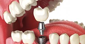 Dental İmplant Maliyetlerini Etkileyen Şaşırtıcı Faktörler