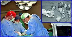Karın Ağrısı Şikayetiyle Gitti Doktorlar Gördüklerine İnanamadılar!!