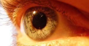 Sarınokta Göz Hastalığı Nedir, Nasıl Tedavi Edilir?