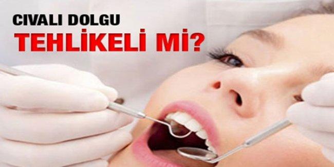 Cıvalı Diş Dolguları Zararlı mı? Uzman Doktor Açıkladı