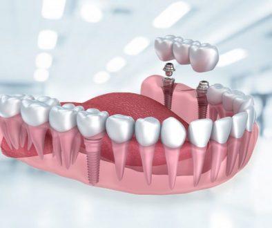 Eryaman Diş Hastanesi Diş Polikliniği