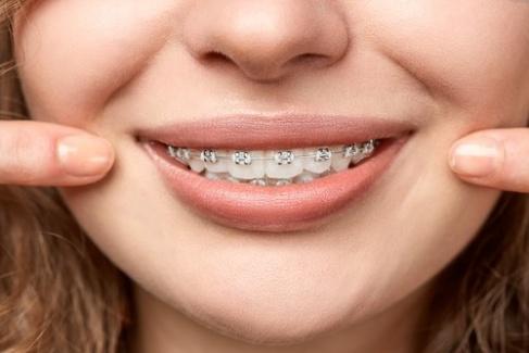 Konya Ortodonti & Tedavileri