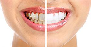 Uzman Doktorlar Diş Hassasiyeti Konusunda Uyardı! Bunları Yapmayın