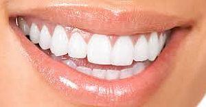 Dişlerine İmplant Yaptırmak İsteyenler Dikkat: TABİP UYARDI